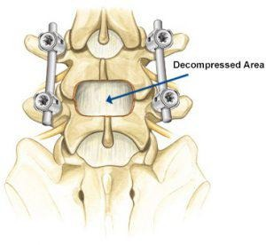 Decompression and Spine Fusion Treatment