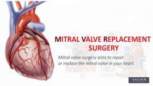 Mitral Valve Replacement Surgery